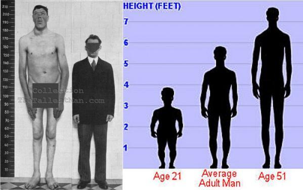 There Dwarf giant height madness midget midgit tall will
